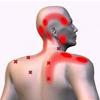 Triggerpoints (pijnbestrijding en zelfbehandeling)